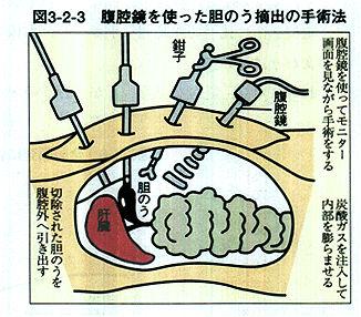 胆嚢 摘出 痩せる